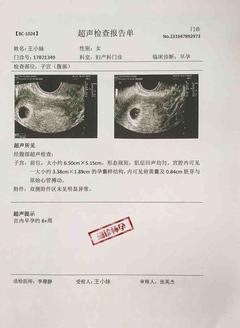 怀孕超声检查报告单